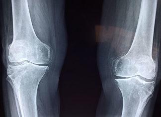 Kiedy warto wykonać badanie densytometryczne – badanie gęstości kości?